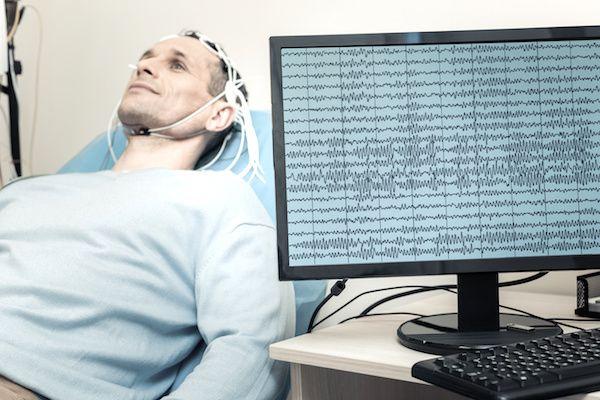 para que se hace un electroencefalograma